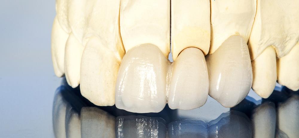Vještačke krunice za zube