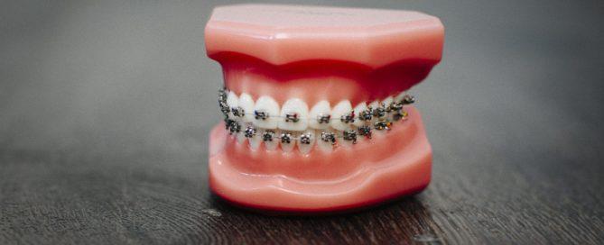 Samoligirajući-aparat-Dentalharmony