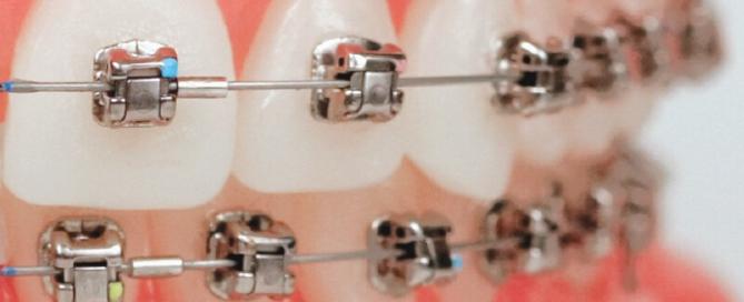Naš svijet_Damon bravice_Dentalharmony