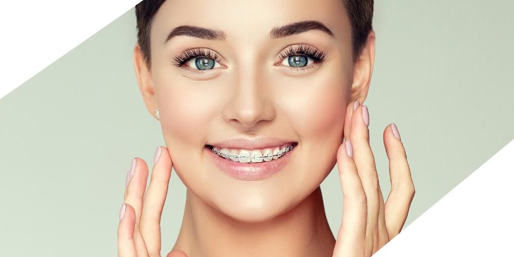 fiksni ortodontski aparati - Dentalharmony