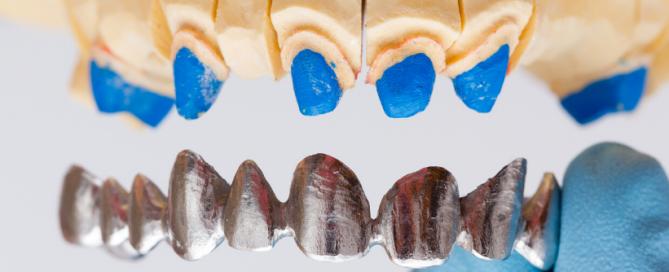 Krunice za zube - Dentalharmony