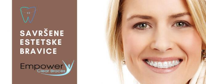 savršene-estetske-bravice-Dentalharmony