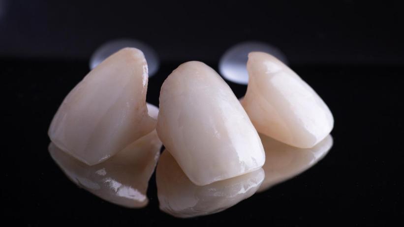 keramičke-krunice-za-zube-dentalharmony